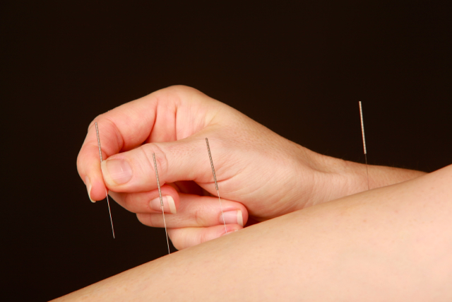Acupuncture Needles on Points